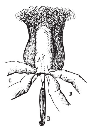 usual: Operation of phimosis by incision. vintage engraved illustration. Usual Medicine Dictionary - Paul Labarthe - 1885. Illustration