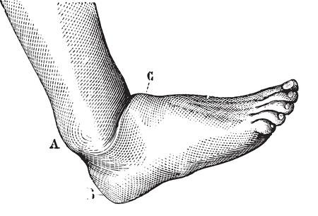 luxacion: Dislocaci�n de la ilustraci�n pie adelante, vintage grabado. Usual Diccionario Medicina - Paul Labarthe - 1885.
