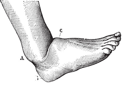 malfunction: Dislocation of the foot forward, vintage engraved illustration. Usual Medicine Dictionary - Paul Labarthe - 1885.