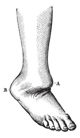 luxacion: Dislocación de la parte posterior del pie, ilustración de la vendimia grabado. Usual Diccionario Medicina - Paul Labarthe - 1885.