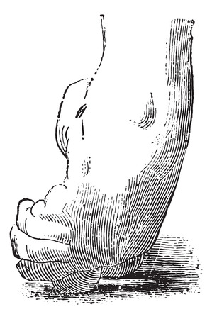 deform: Clubfoot or congenital talipes equinovarus, vintage engraved illustration. Usual Medicine Dictionary - Paul Labarthe - 1885.