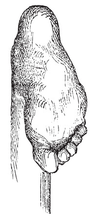 deform: Clubfoot or congenital talipes equinovarus (CTEV), vintage engraved illustration. Usual Medicine Dictionary - Paul Labarthe - 1885.