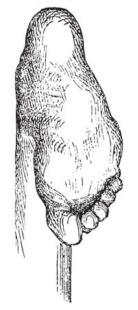 deform: Clubfoot or congenital talipes equinovarus (CTEV), vintage engraved illustration. Usual Medicine Dictionary - Paul Labarthe - 1885.