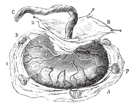 dr: Placenta with five cotyledons isolated, vintage engraved illustration. Usual Medicine Dictionary by Dr Labarthe - 1885.