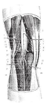 Knieholte regio (links), vintage gegraveerde illustratie. Usual Geneeskunde Woordenboek door Dr. Labarthe - 1885.