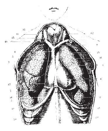 alveolos pulmonares: Cortar el área del pecho para un espectáculo disponible pulmones, pleura y pericardio, cosecha ilustración grabada. Diccionario Usual Medicina por el Dr. Labarthe - 1885.
