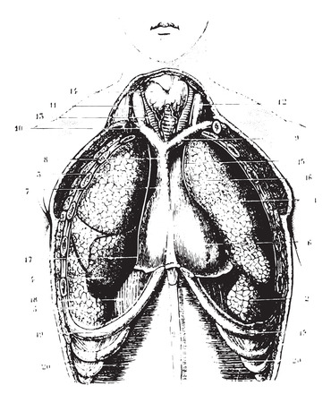 superior vena cava: Cutting the chest area for a show available lungs, pleura and pericardium, vintage engraved illustration. Usual Medicine Dictionary by Dr Labarthe - 1885. Illustration