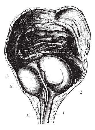 benign: Enlarged prostate or Benign prostatic hyperplasia (BPH), determining a stagnation of urine but not a complete retention, vintage engraved illustration. Usual Medicine Dictionary by Dr Labarthe - 1885. Illustration