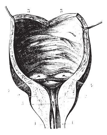 benign: Prostatic hypertrophy and subsequent bladder walls, vintage engraved illustration. Usual Medicine Dictionary by Dr Labarthe - 1885.