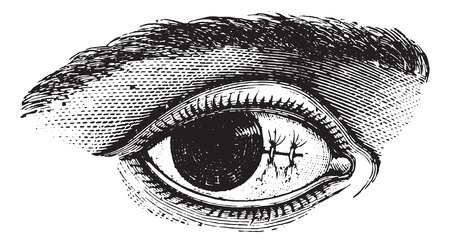 dr: Suture of the conjunctiva after excision of pterygium, vintage engraved illustration. Usual Medicine Dictionary by Dr Labarthe - 1885.