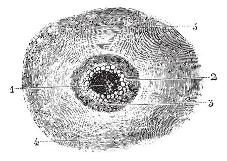 pustule: Malignant pustule or Anthrax, vintage engraved illustration. Usual Medicine Dictionary by Dr Labarthe - 1885. Illustration