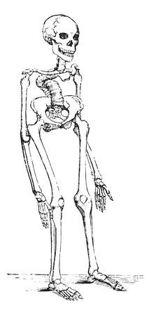 Skeleton deformed by rickets which deflected the spinal column, vintage engraving. Ilustração