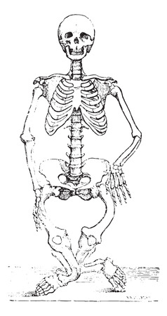 dr: Skeleton deformed by rickets, vintage engraved illustration. Usual Medicine Dictionary by Dr Labarthe - 1885.