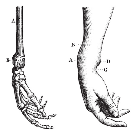 fractura: Fractura de la extremidad inferior del radio, cosecha ilustración grabada. Diccionario Usual Medicina por el Dr. Labarthe - 1885. Vectores