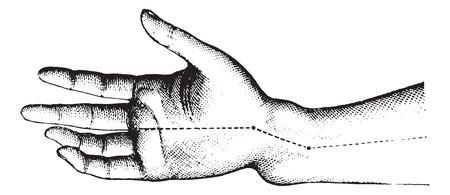 distal: Fractura de la extremidad inferior del radio. La figura muestra el miembro de Z deformación, vintage illustration.Usual grabado Diccionario de Medicina por el Dr. Labarthe - 1885.