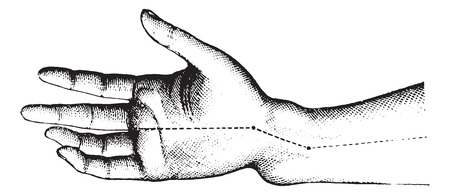 extremity: Fracture of the lower extremity of the radius. The figure shows the deformation Z member, vintage engraved illustration.Usual Medicine Dictionary by Dr Labarthe - 1885.