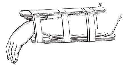 distal: Dispositivo Nelaton para fracturas de radio distal, vintage grabado illustration.Usual Diccionario de Medicina por el Dr. Labarthe - 1885.