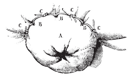 Extirpation of the lower end of the rectum by the method of ligation Recamier, vintage engraved illustration. Usual Medicine Dictionary by Dr Labarthe - 1885. Illustration