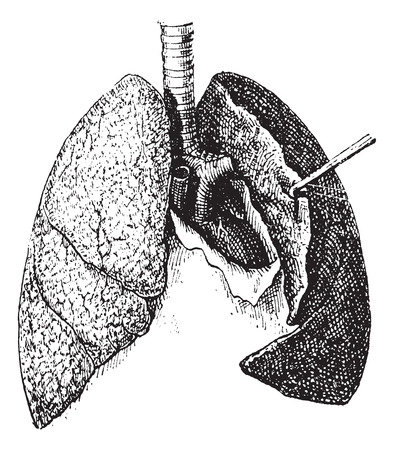 tissues: Old engraved illustration of human lungs isolated on a white background. Dictionary of words and things - Larive and Fleury ? 1895 Illustration