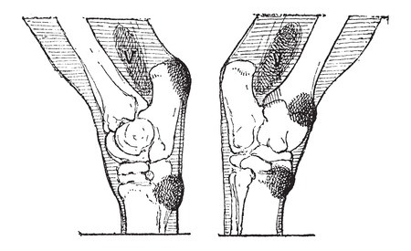 tarsal: Defects of the Hock or Gambrel of a Horse, vintage engraved illustration. Dictionary of Words and Things - Larive and Fleury - 1895