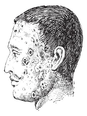 skin infections: Ilustraci�n del Antiguo grabado de rostro humano infectado con imp�tigo aislado en un fondo blanco. Diccionario de palabras y las cosas - Larive y Fleury? 1895