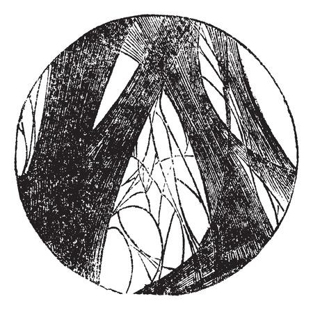 factors: Coagulated fibrin, vintage engraving. Old engraved illustration of Coagulated fibrin.