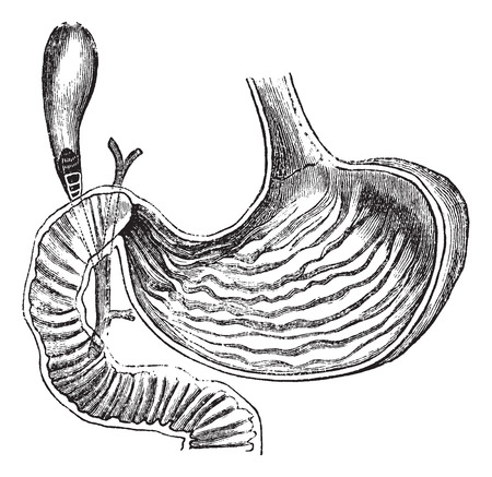 Human Stomach, vintage engraved illustration. Trousset encyclopedia (1886 - 1891).