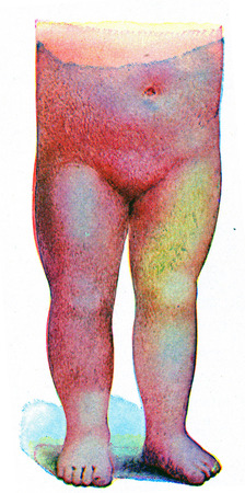 infectious disease: Erysipelas, vintage engraved illustration.