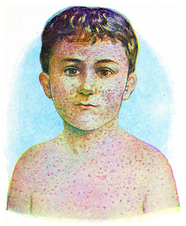 medical drawing: Measles, vintage engraved illustration.