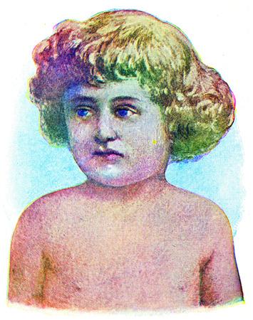 fiebre: La escarlatina, ilustración de la vendimia grabado. Foto de archivo