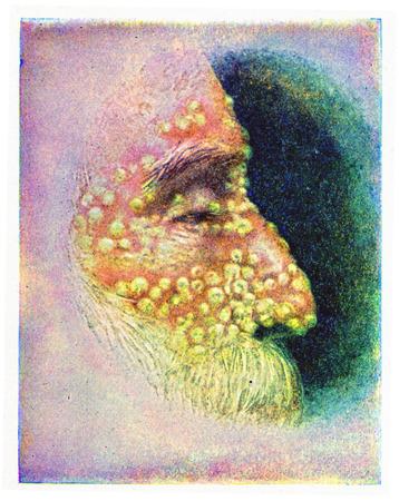 infectious: Smallpox, vintage engraved illustration. Stock Photo