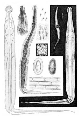 topografia: Topografía de los órganos, vintage grabado ilustración. Foto de archivo