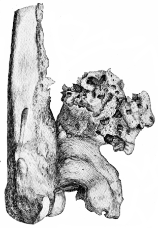 ulceration: Osteophytes on the popliteal aspect of the lower end of the femur, vintage engraved illustration. Stock Photo