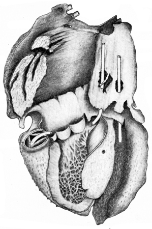 rupture: Heart showing villous pericarditis, vintage engraved illustration.