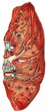 pneumonia: Lung, croupous pneumonia, vintage engraved illustration.