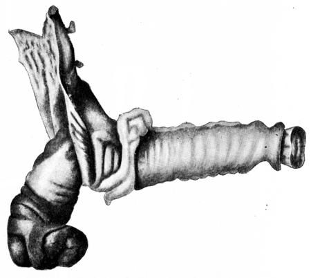 ileum: Intussusception at ileocecal valve, vintage engraved illustration. Stock Photo