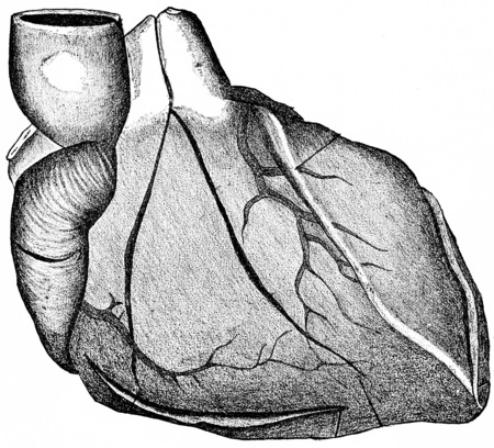 right ventricle: Heart showing the lines for incision in the preliminary examination and final section, fully exposing the valves, vintage engraved illustration. Stock Photo