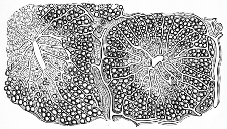 liver cells: Fatty infiltration of the liver, vintage engraved illustration. Stock Photo