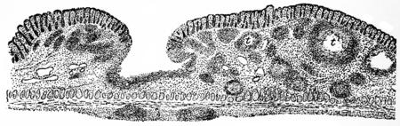mucosa: Tubercular ulcer, vintage engraved illustration. Stock Photo