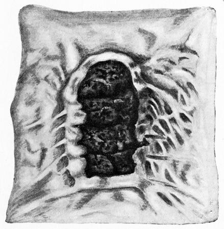 ulc�re: Intestin gr�le, l'ulc�re de la typho�de au cours de la premi�re partie de la troisi�me semaine de la maladie, illustration vintage grav�. Banque d'images