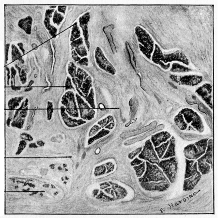 Section of left parotid under a very low power, vintage engraved illustration.