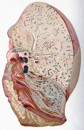 pleura: Lung, croupous pneumonia, vintage engraved illustration.