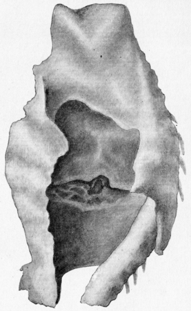 ulceration: Perichondritis with laryngeal ulceration, vintage engraved illustration. Stock Photo