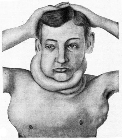 infectious disease: Hodgkins disease, vintage engraved illustration. Stock Photo