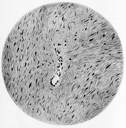 fibrous: Soft fibroma, vintage engraved illustration.
