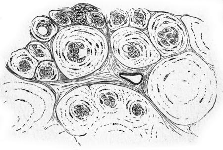 connective tissue: Colloid cancer, vintage engraved illustration.