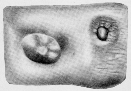 cutaneous: Part of cutaneous surface of right mamma, vintage engraved illustration.