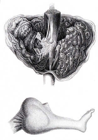 cancer foot: Anatomy of encephaloid tumor that requires amputation at the thigh, vintage engraved illustration.
