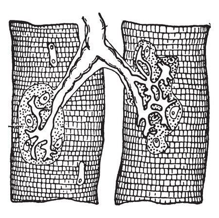 myelin sheath: Nerve ending in muscle-fibers, vintage engraved illustration. Illustration