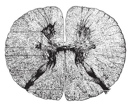 척수: Section of the spinal cord, vintage engraved illustration.